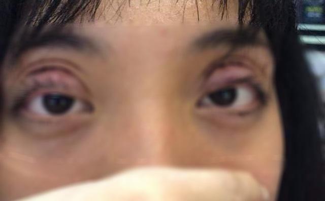 Công nghệ cắt mí mắt không đảm bảo an toàn