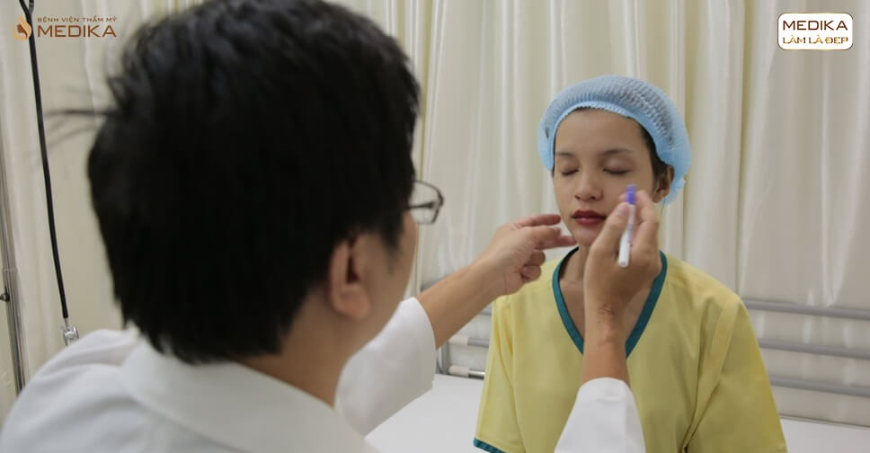 Đang mang thai có thể lấy mỡ mí mắt không?
