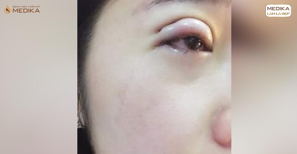 Cắt mí mắt bị hỏng phải làm sao để khắc phục?