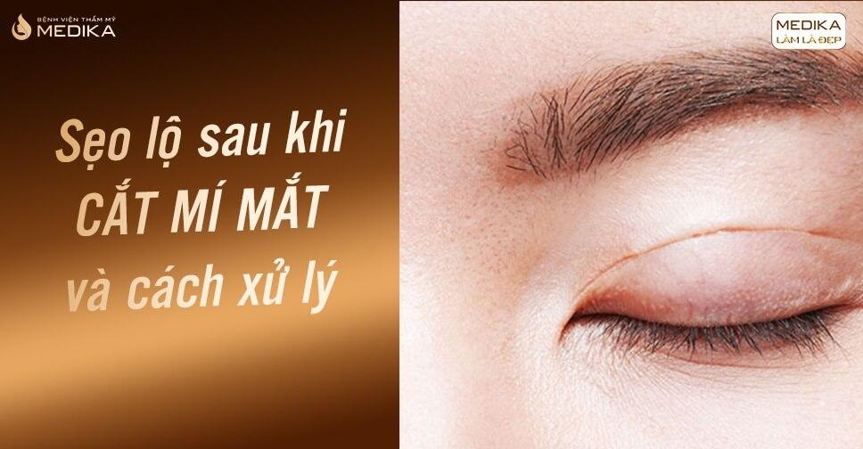 Cắt mí mắt cách xử lý bị sẹo lộ