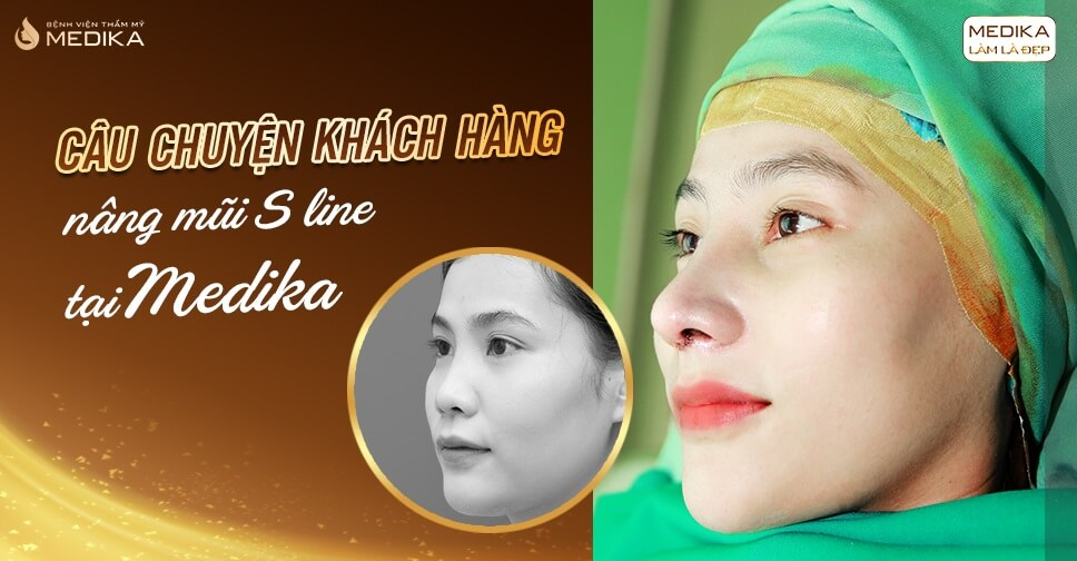 Câu chuyện khách hàng nâng mũi S line tại MEDIKA.vn