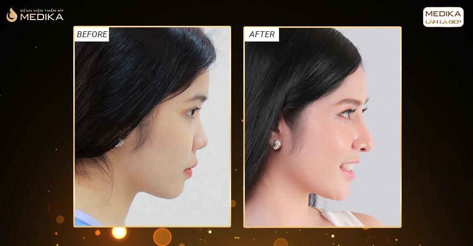 Chú ý trước và sau khi nâng mũi bằng sụn tự thân khi bị viêm xoang - MEDIKA.vn