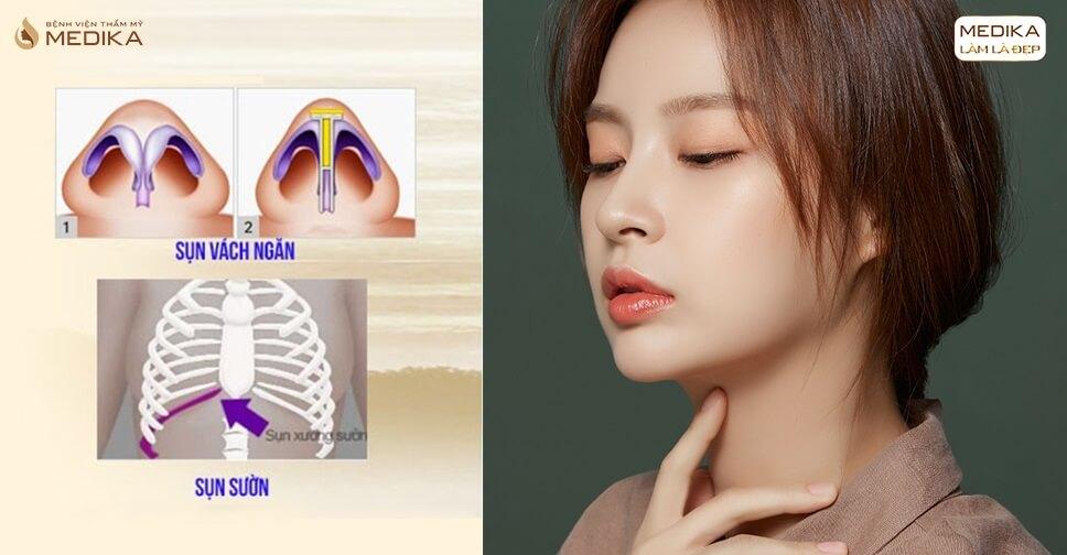 Chú ý trước và sau khi nâng mũi sụn tự thân khi bị viêm xoang - Bệnh viện thẩm mỹ MEDIKA