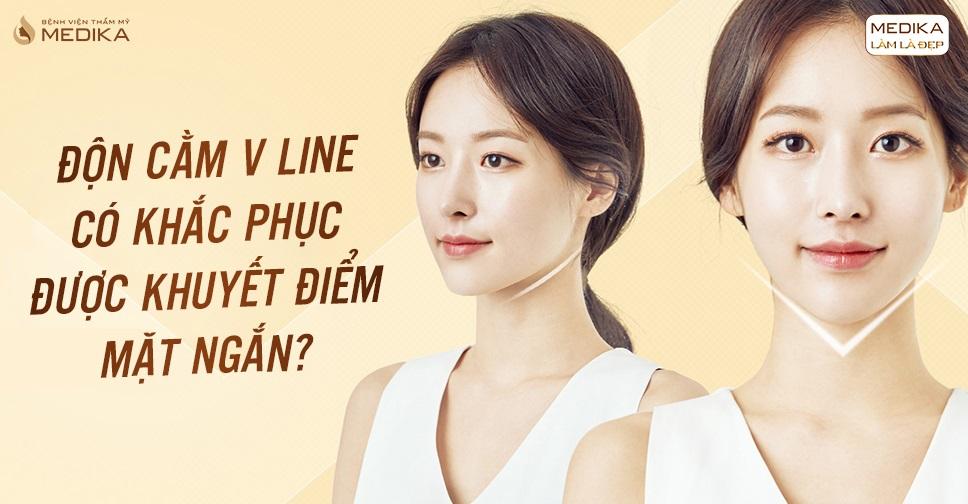 Độn cằm V line có khắc phục được khuyết điểm mặt ngắn?