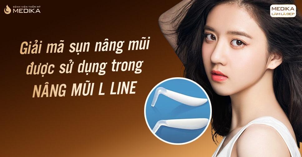 Giải mã sụn nâng mũi được sử dụng trong nâng mũi L line - Bệnh viện thẩm mỹ MEDIKA