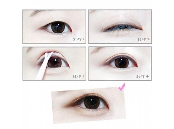 kích mí giúp tạo mắt 2 mí như cắt mí mắt tại MEDIKA