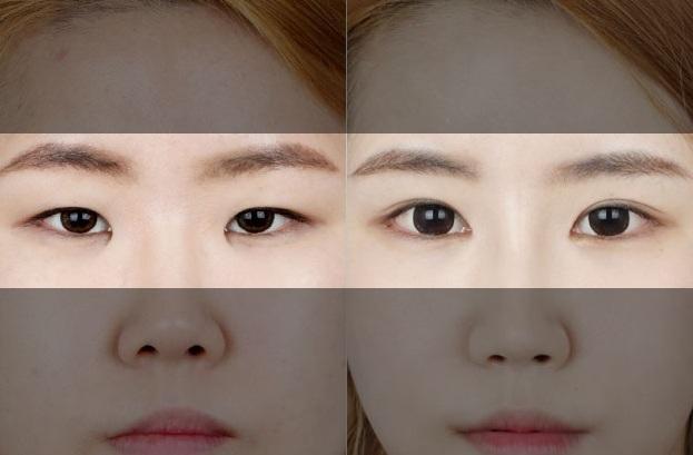 sử dụng lens giúp tạo mắt 2 mí như cắt mí mắt tại MEDIKA