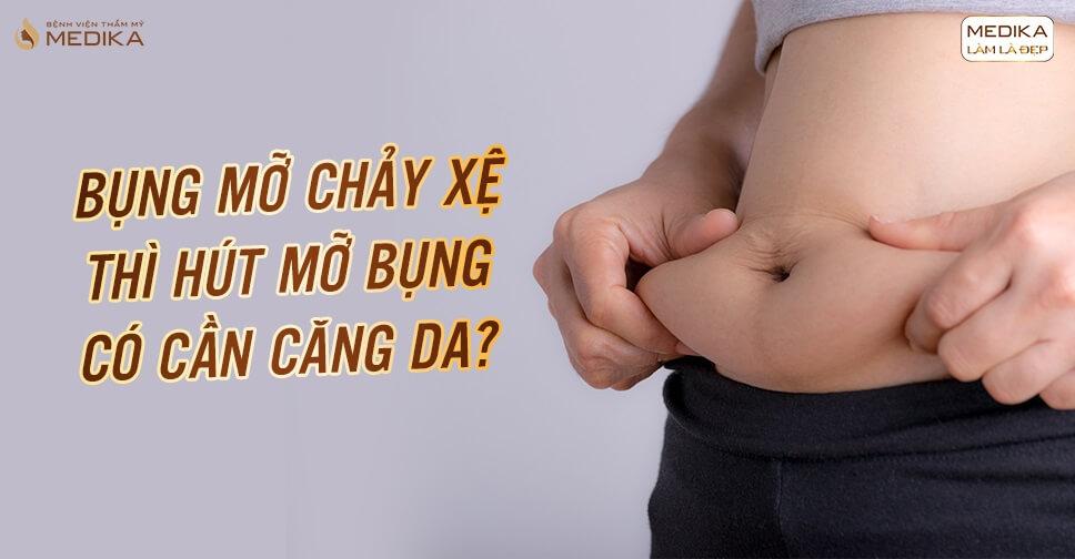 Bụng mỡ chảy xệ thì hút mỡ bụng có cần căng da?