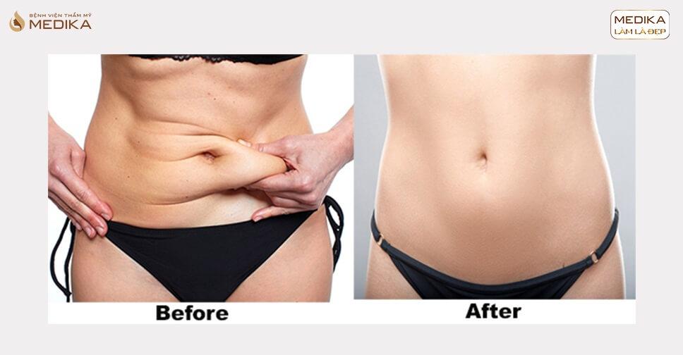 Hút mỡ bụng – giải pháp loại bỏ mỡ sau 90 phút