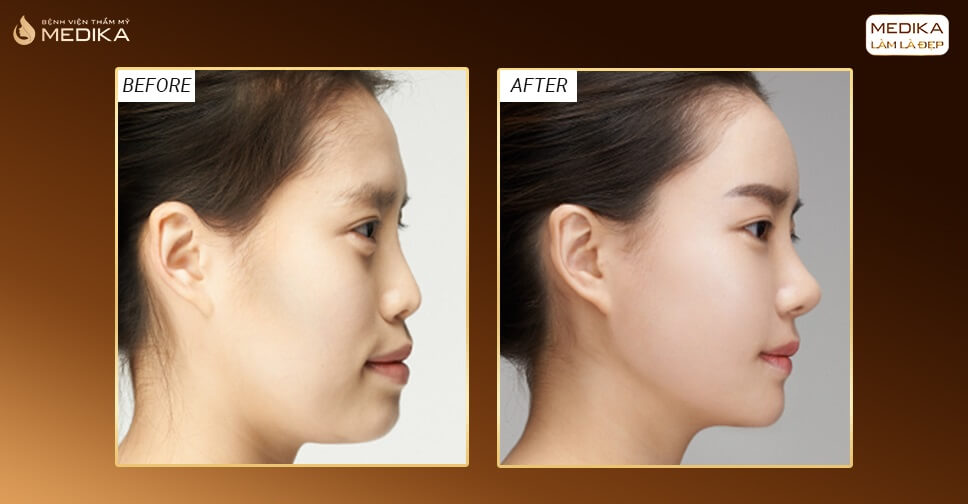 Lựa chọn phẫu thuật nâng mũi an toàn hay đột phá? - MEDIKA.vn