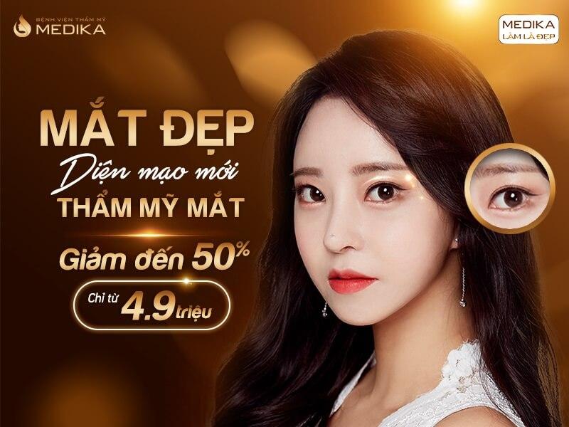 Mắt đẹp diện mạo mới tháng 05-2020 - MEDIKA.vn