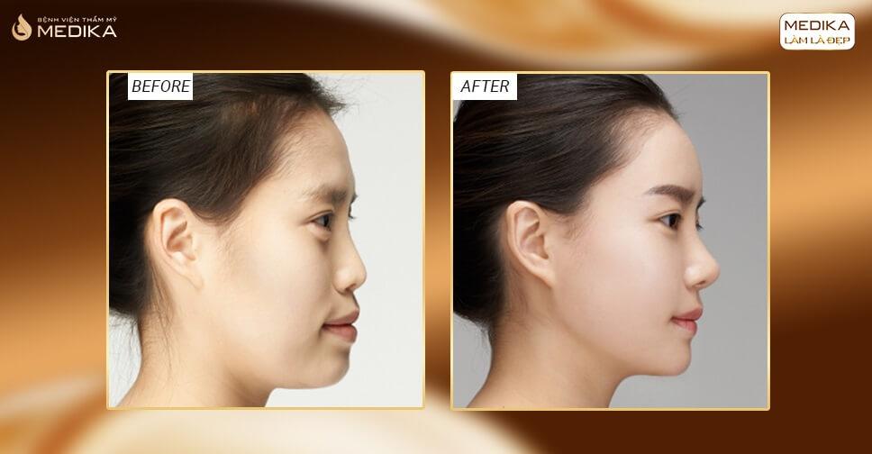 Nâng mũi 3D - 10 ngày đẹp hết sưng đau dừng ăn kiêng - MEDIKA.vn