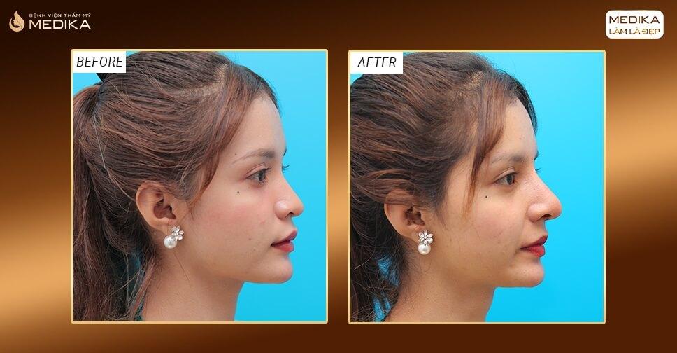Nâng mũi bằng sụn sườn giải quyết triệt để sóng mũi tụt do phẫu thuật - MEDIKA.vn