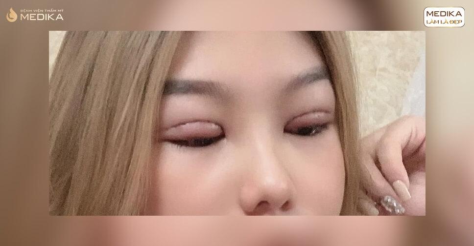 Nếp mí sưng phồng sau cắt mắt 2 mí làm sao để khắc phục?