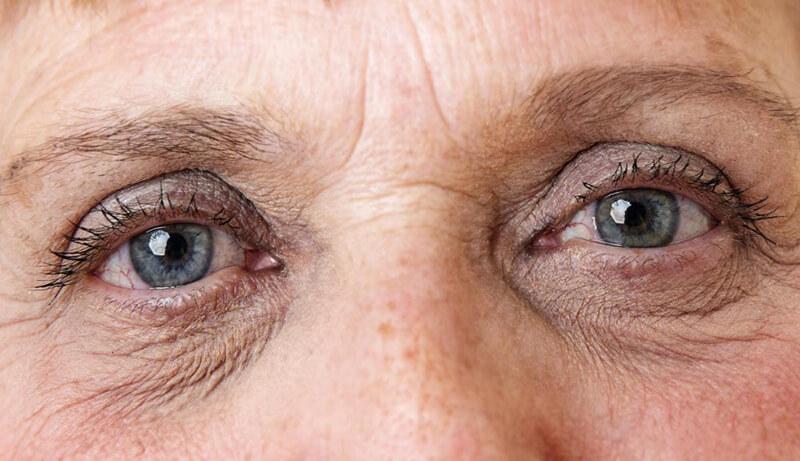 dấu hiệu của nhận biết lão hóa mắt