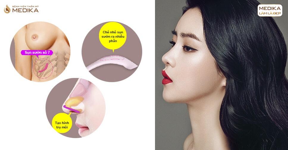 Những tác hại khôn lường vì ăn mì tôm sau nâng mũi bằng sụn sườn - MEDIKA.vn