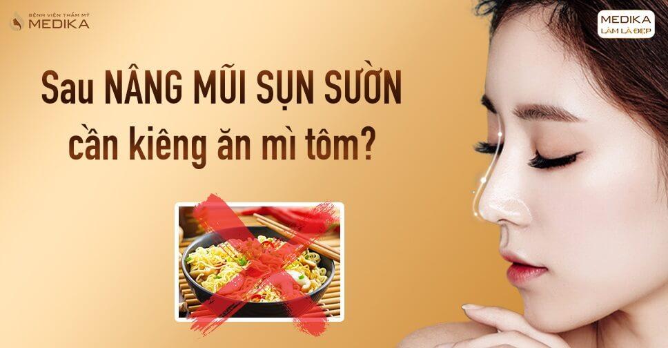 Những tác hại khôn lường vì ăn mì tôm sau nâng mũi sụn sườn - Bệnh viện thẩm mỹ MEDIKA