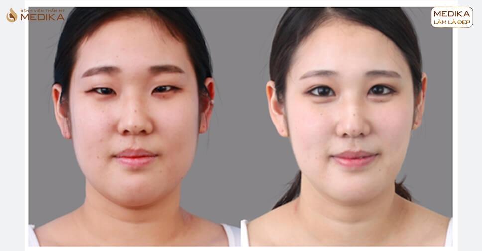 Phẫu thuật mắt to có khắc phục nhược điểm mắt lé?