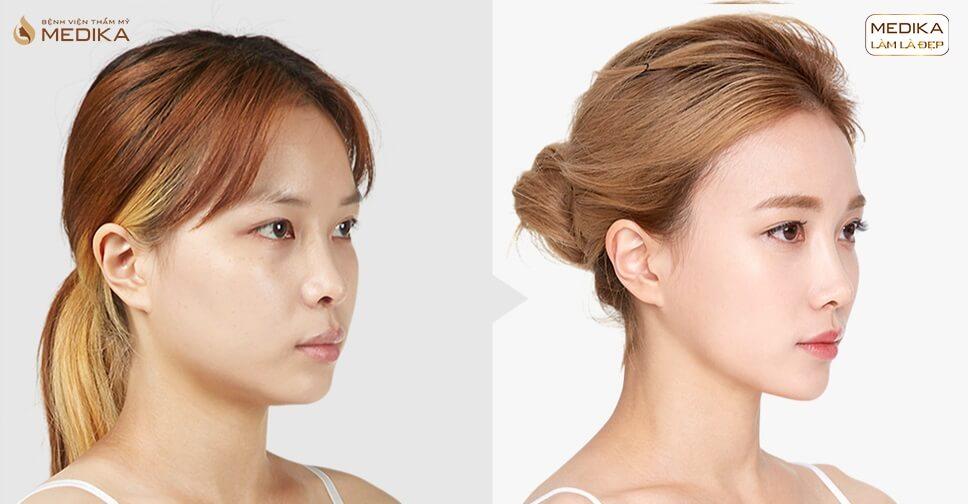 Phẫu thuật nâng mũi an toàn - MEDIKA lựa chọn hoàn hảo - MEDIKA.vn