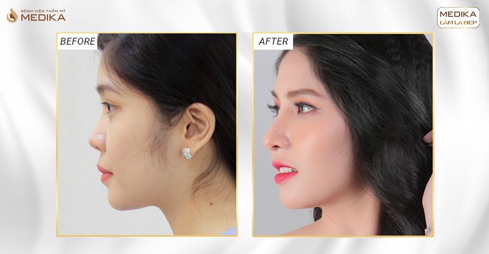 Phẫu thuật nâng mũi đẹp - Chiếc mũi bao nhiều mơ ước - MEDIKA.vn