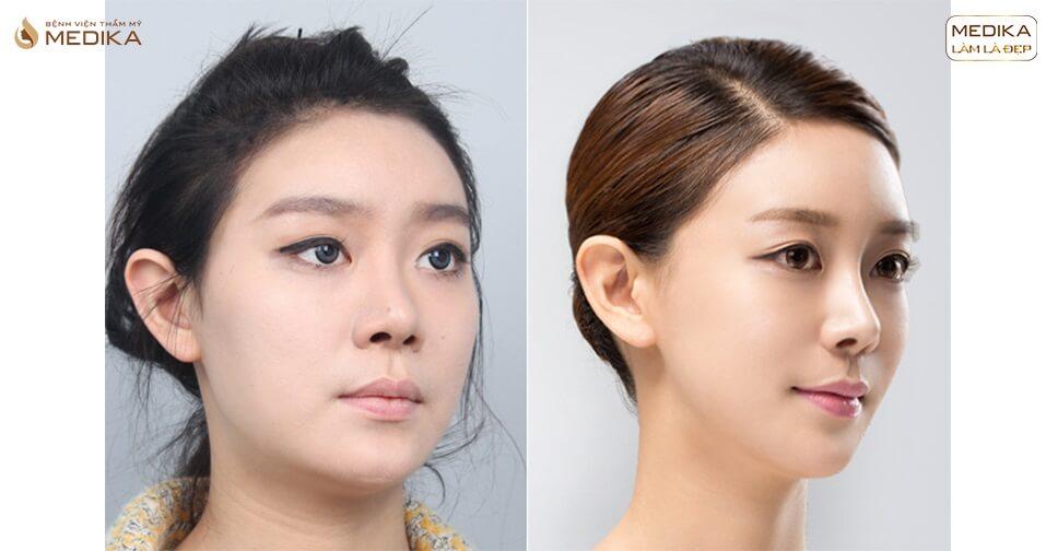 Phẫu thuật nâng mũi đẹp lựa chọn hoàn hảo từ Bệnh viện thẩm mỹ MEDIKA