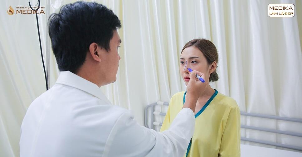 Phẫu thuật nâng mũi đẹp mang đến chiếc mũi hài hòa cho khách - MEDIKA.vn