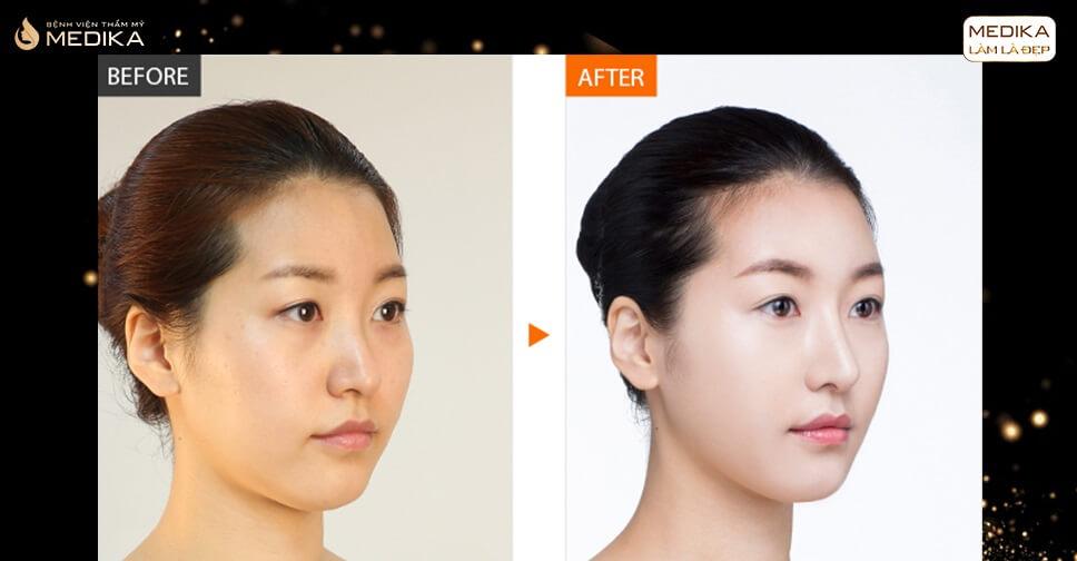 So sánh giữa nâng mũi S line và nâng mũi bọc sụn - MEDIKA.vn
