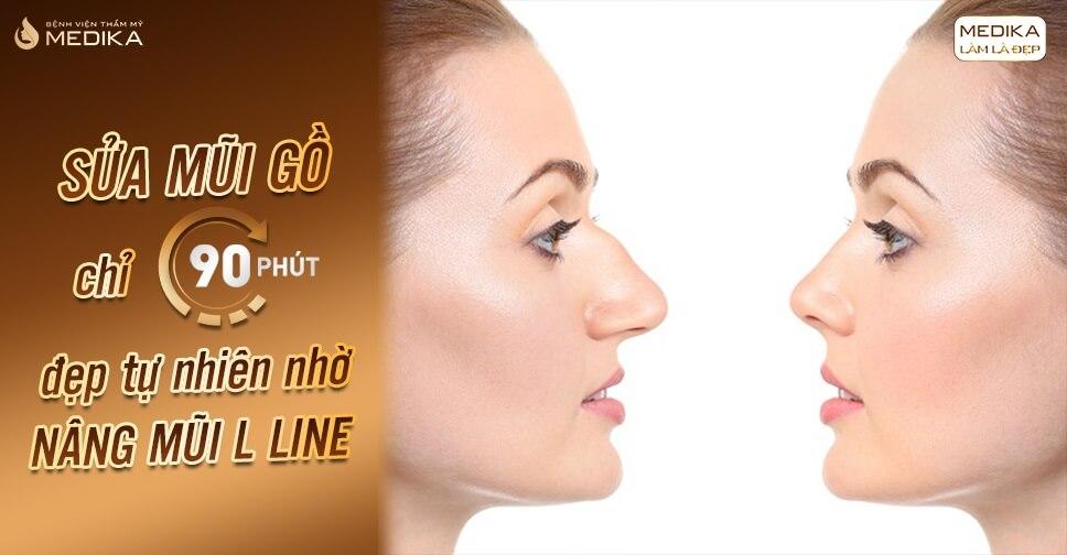 Sửa mũi gồ chỉ 90 phút đẹp tự nhiên nhờ nâng mũi L line - Bệnh viện thẩm mỹ MEDIKA