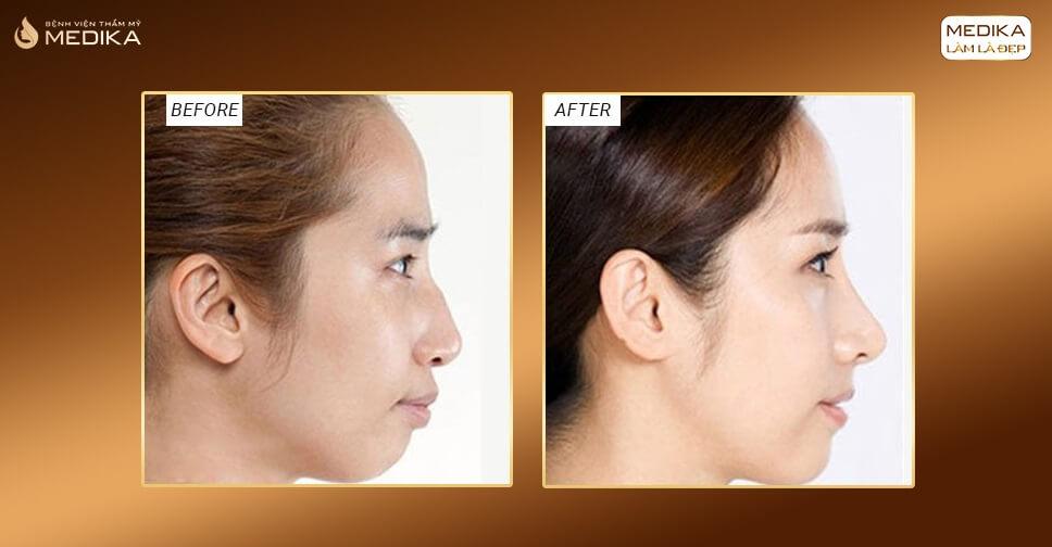 Sửa mũi gồ chỉ 90 phút đẹp tự nhiên nhờ nâng mũi L line - MEDIKA.vn