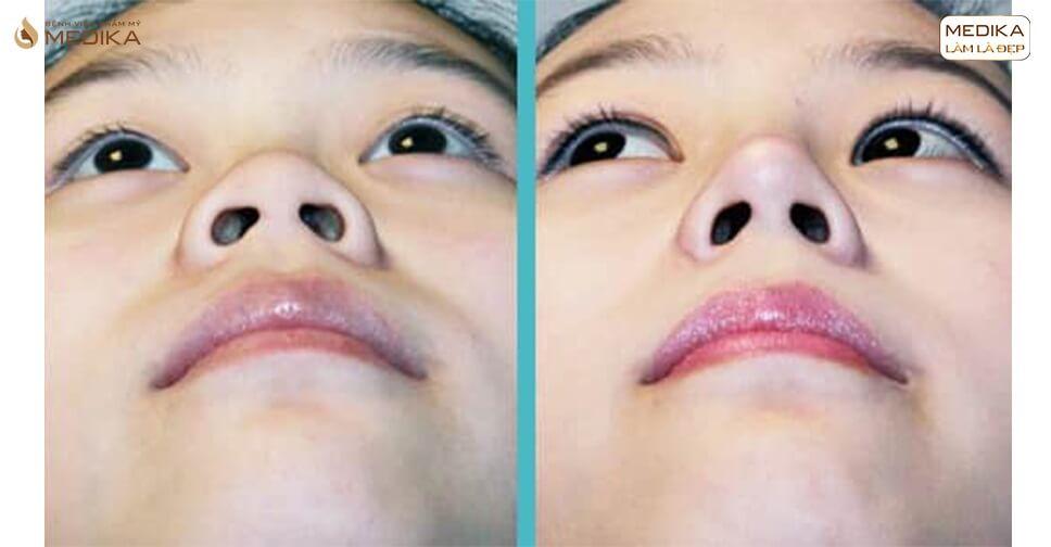 Thu gọn cánh mũi có làm cho chiếc mũi cao hơn không? - MEDIKA.vn