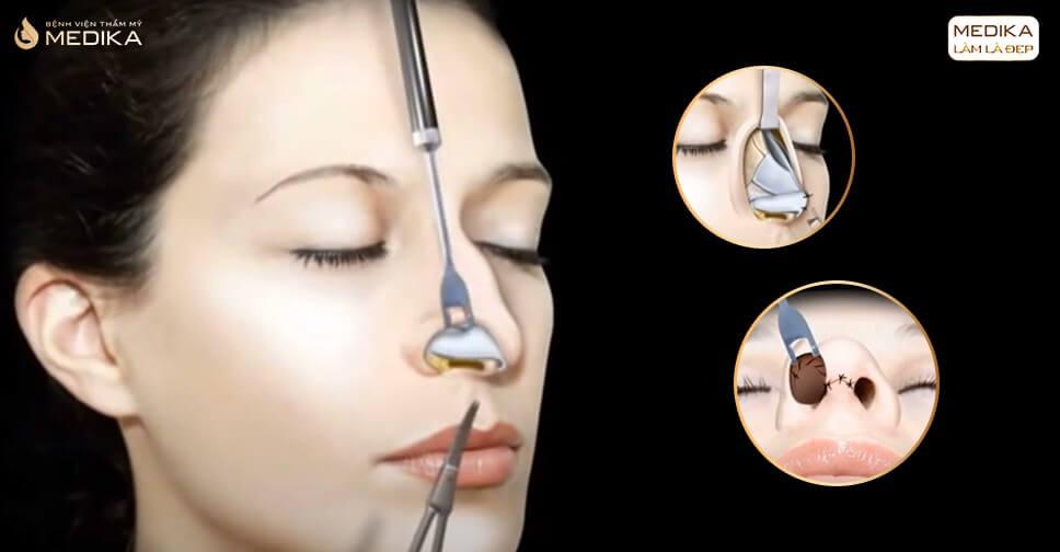 Thu gọn cánh mũi có nguy cơ để lại sẹo không? - MEDIKA.vn