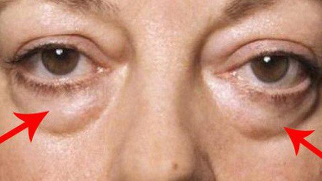 bọng mắt chảy sệ dấu hiệu của lão hóa