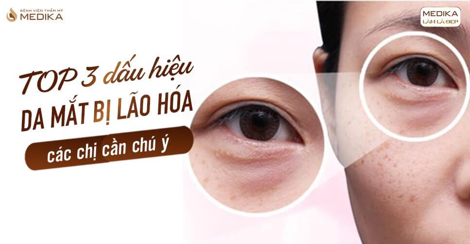 TOP 3 dấu hiệu da mắt bị lão hóa các chị cần chú ý