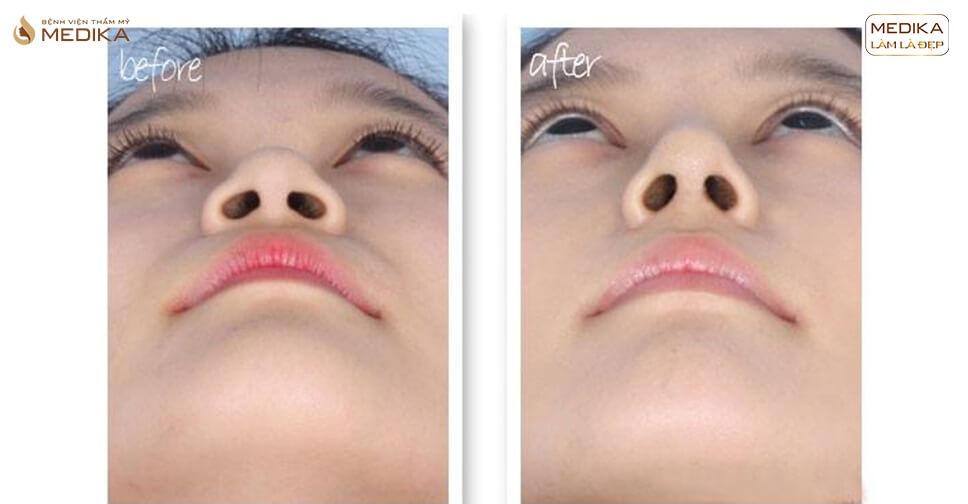 Top 3 phương pháp thu gọn cánh mũi đang được ưa chuộng - MEDIKA.vn