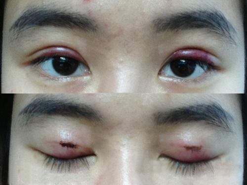 mắt bị nhiễm khuẩn khi cắt mí mắt