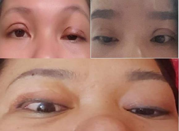 cắt mí mắt bị hỏng làm mắt bị mất thẩm mỹ