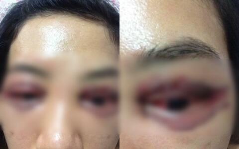 mắt bị hỏng do mở rộng ở spa chui