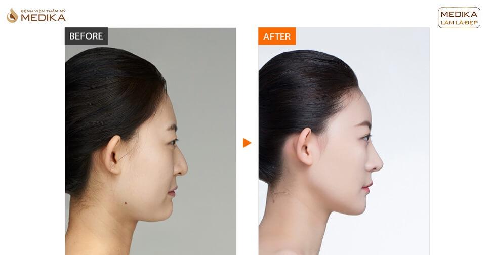 3 cách phẫu thuật nâng mũi đẹp tự nhiên không lo bóng đỏ - Bệnh viện thẩm mỹ MEDIKA