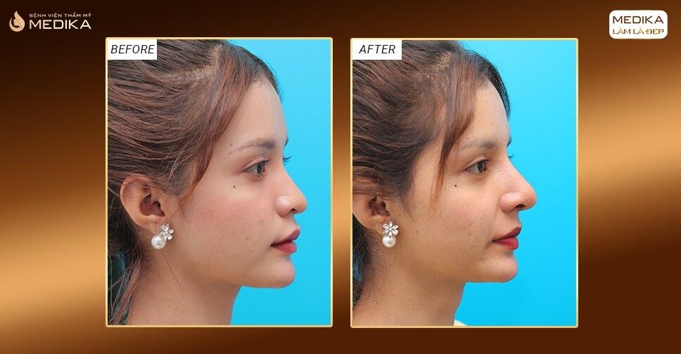 4 ưu điểm nổi bật của nâng mũi bằng sụn sườn với giá tốt ở bệnh viện thẩm mỹ MEDIKA