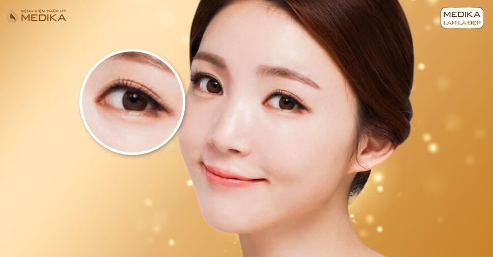 Bấm mí -  cách tạo mắt 2 mí đẹp tự nhiên