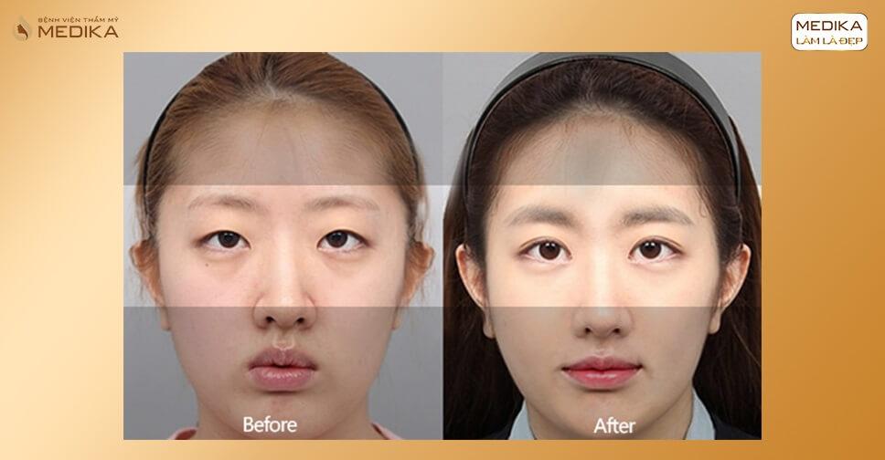 Bấm mí có khắc phục được mắt bị lé kim không?