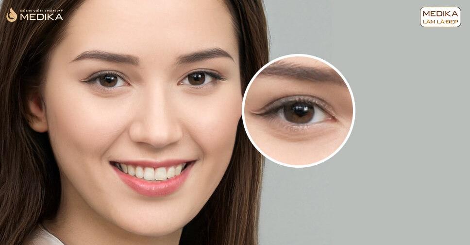 Bấm mí mắt có hại không? & đừng bỏ qua 4 loại thực phẩm này