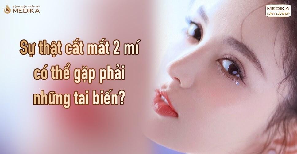 cat-mat-2-mi-co-the-gap-phai-nhung-tai-bien-loi-don-co-phai-that