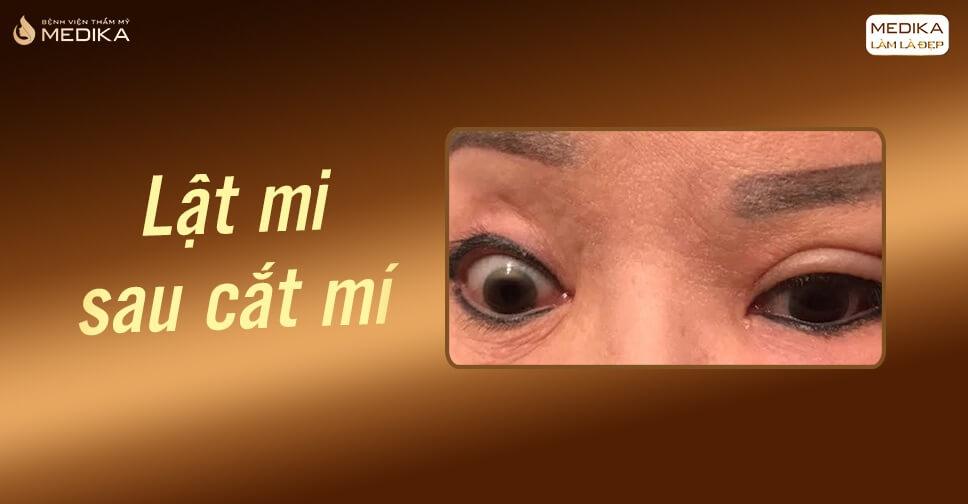 Cắt mắt hai mí có khiến lông mi mọc sai hướng hay không?