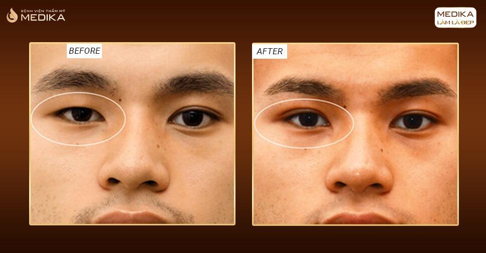 Cắt mắt hai mí nam bị chứng song thị liệu có sao không?