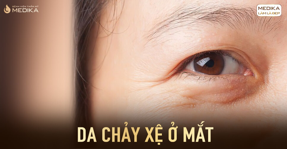 Dấu hiệu lão hóa ở mắt của người có tuổi