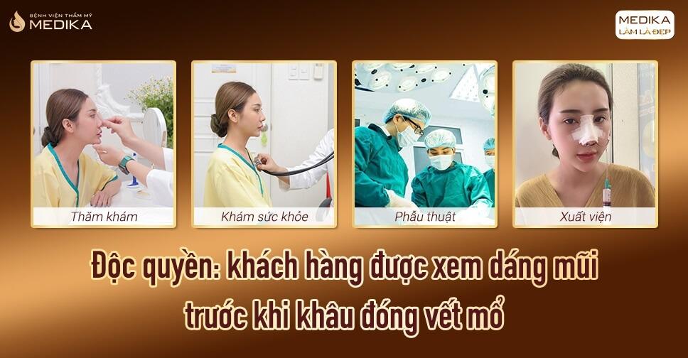 Điều cần biết về quy trình nâng mũi L line chuẩn y khoa - Bệnh viện thẩm mỹ MEDIKA