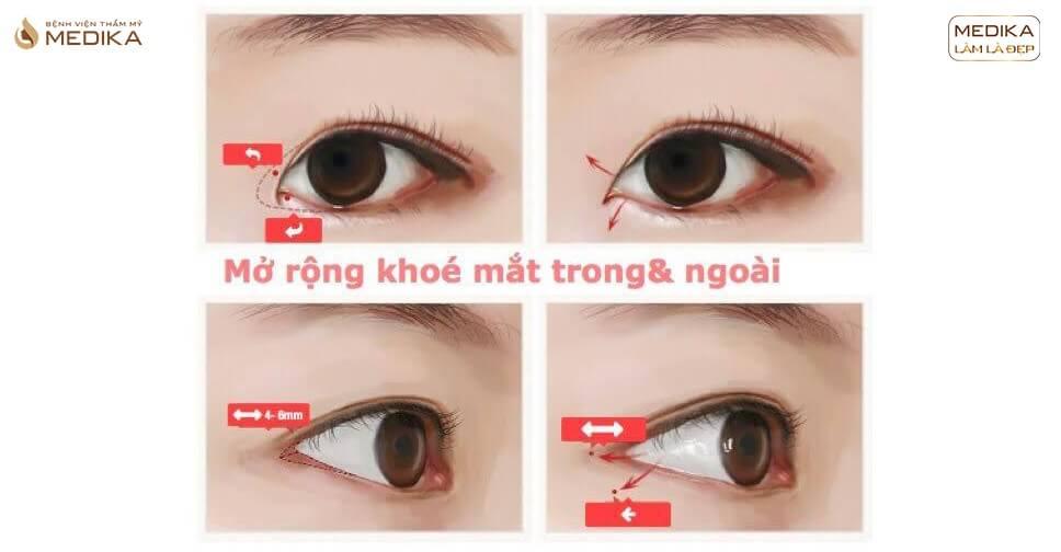 """Đôi mắt đẹp và những phương pháp thẩm mỹ mắt tiêu chuẩn """"vàng"""""""