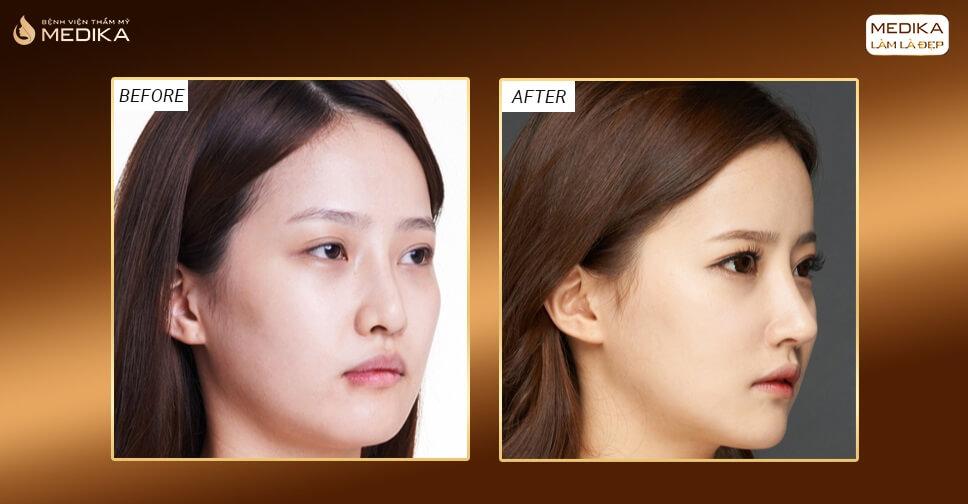 Gợi ý lựa chọn phương pháp phẫu thuật nâng mũi đẹp phù hợp - Bệnh viện thẩm mỹ MEDIKA