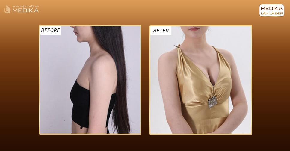 Kết quả nâng ngực túi Nano Chip Perfect - Bệnh viện thẩm mỹ MEDIKA